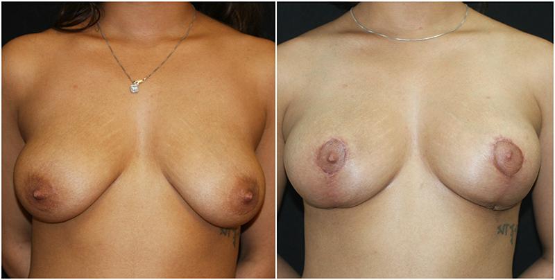 breastlift_ba_7_800px.jpg