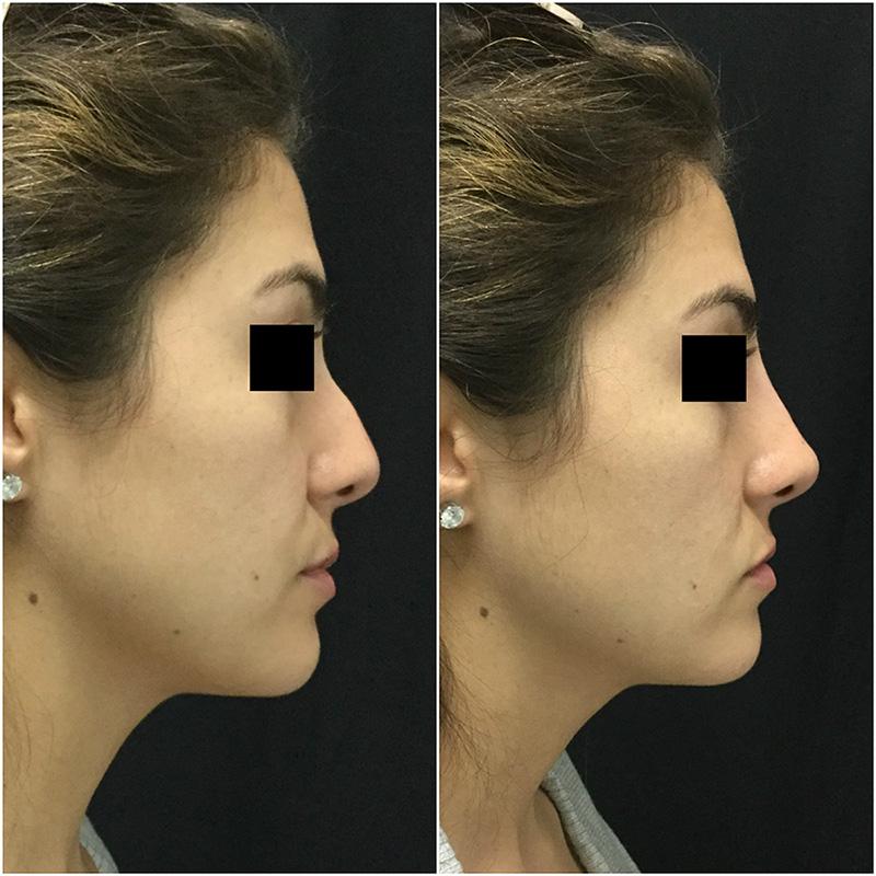 non-surgical-rhinoplasty-ba-1.jpg