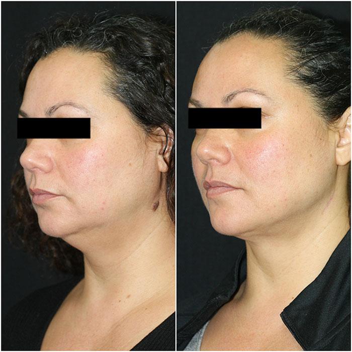 liposuction_ba_19 copy.jpg
