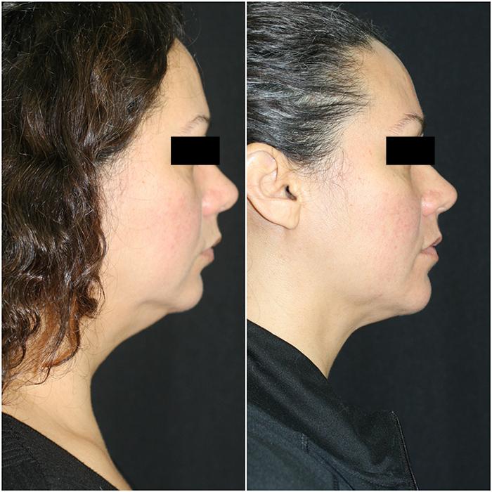 liposuction_ba_18 copy.jpg
