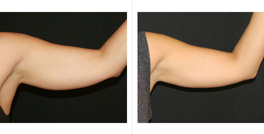 coolsculpting_before_after_12.png