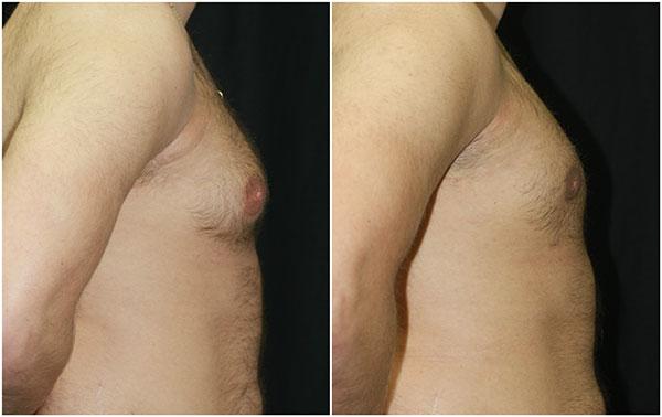 gynecomastia_ba_2_web.jpg