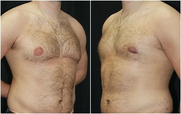 gynecomastia_ba_3_web.jpg