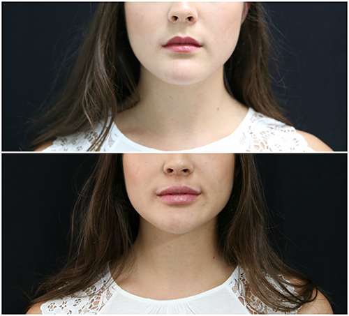 lip_augmentation_ba_14_web.jpg