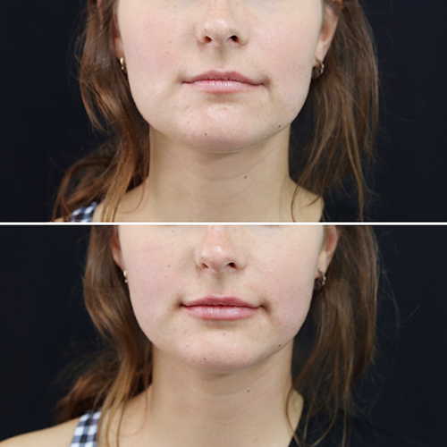 lip_augmentation_ba_15_web.jpg