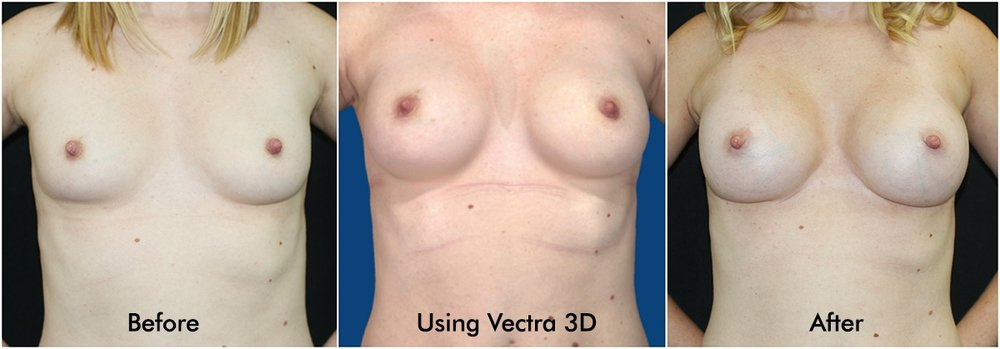 Front Breast Augmentation Before and After