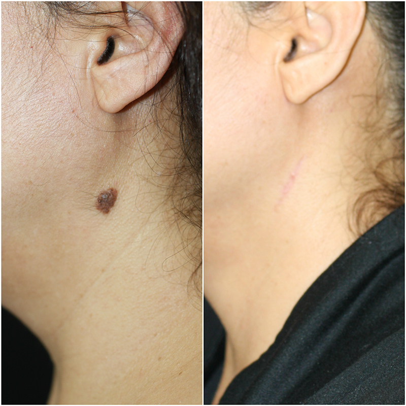 Mole Removal 3 Months Post Treatment
