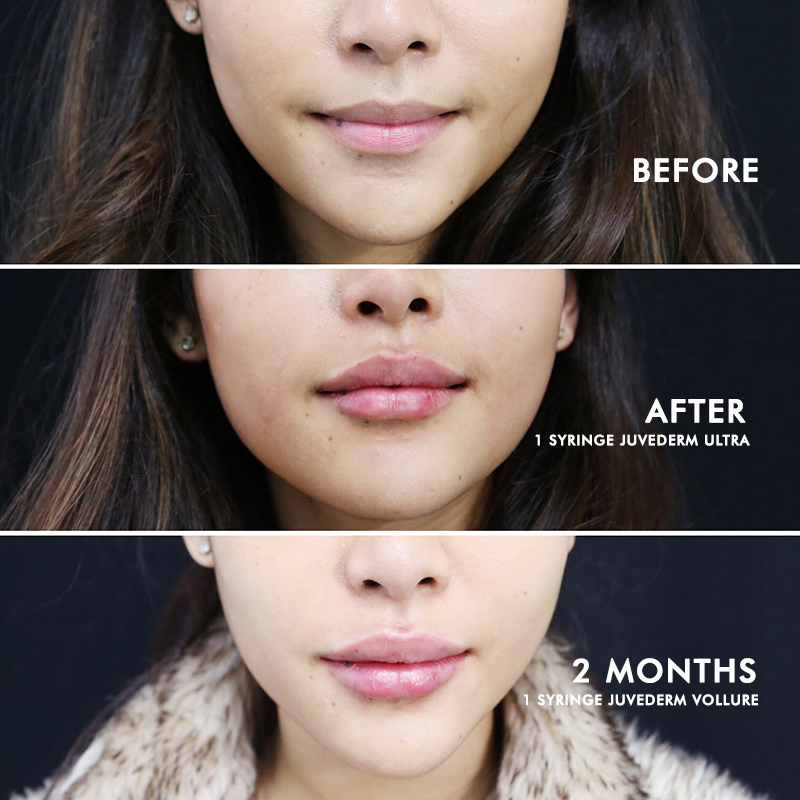 lip augmentation before and after san francisco