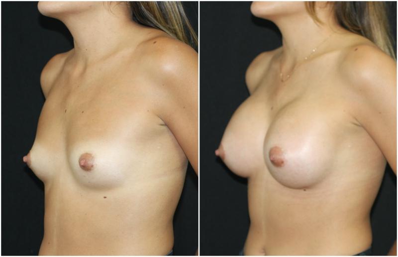 breast-aug_ba_15_web.jpg