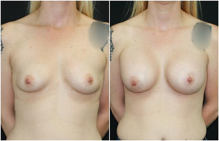 breast-aug_ba_14_web.jpg