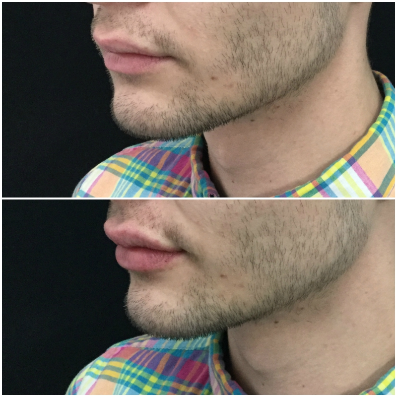 lip_augmentation_ba_17_web.jpg