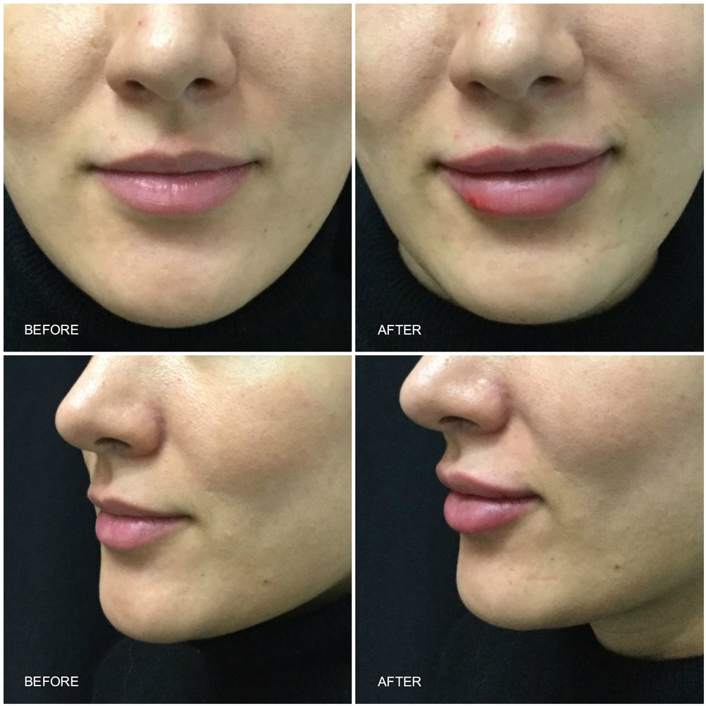 lip_augmentation_ba_19.jpg