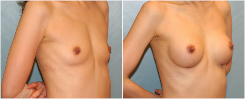 Breast Augmentation Before and After
