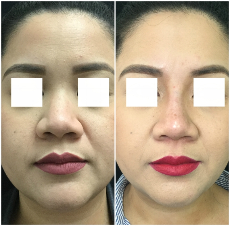 non-surgical-rhinoplasty-ba-17.jpg