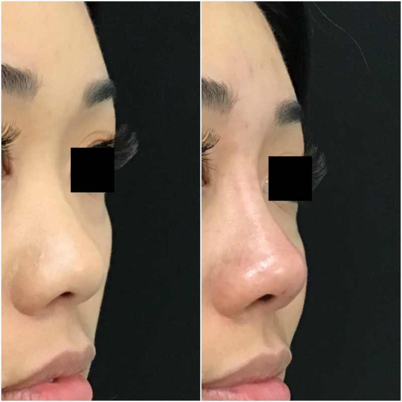 Asian Non-Surgical Rhinoplasty Before and After