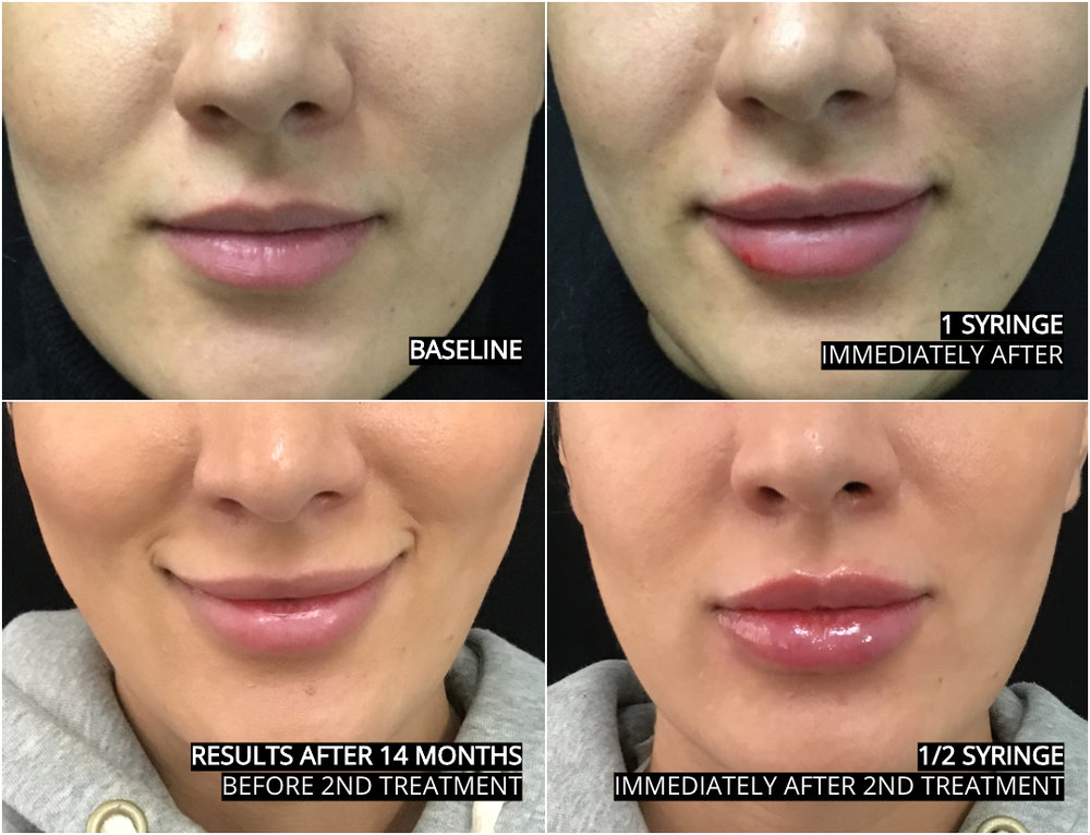 lip_augmentation_ba_40.jpg