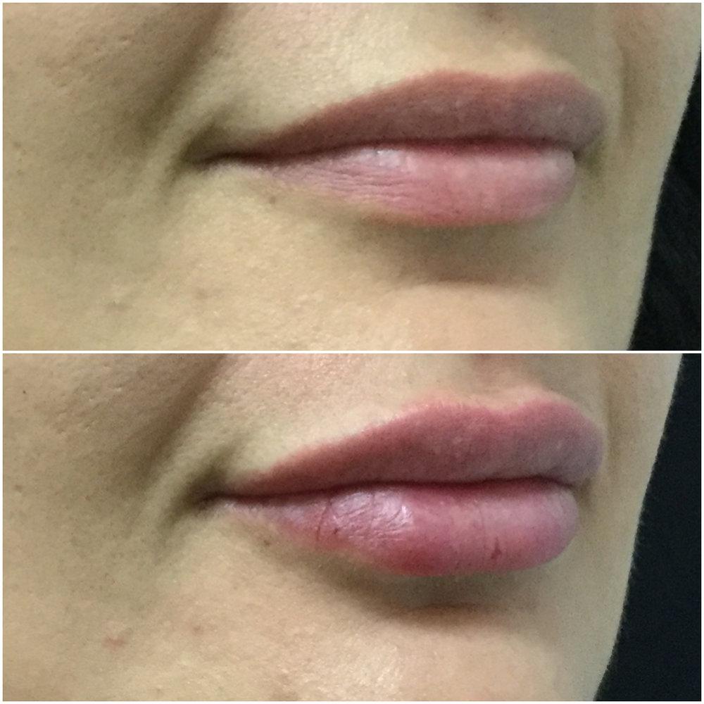 lip_augmentation_ba_39.jpg