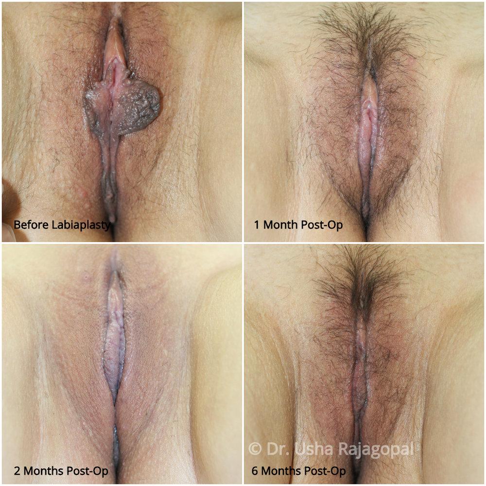 dr-usha-rajagopal-labiaplasty.jpg