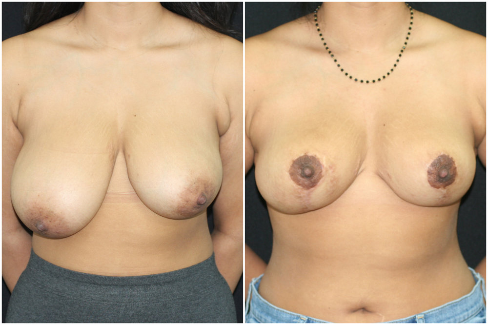 breast reduction_ba_8.jpg