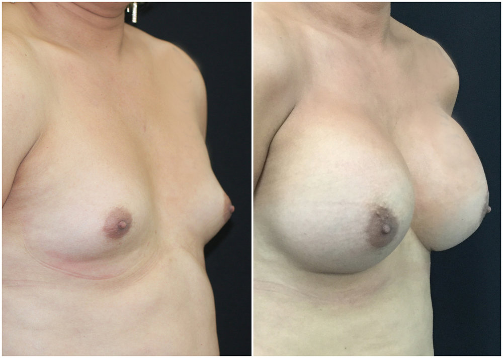 Male-to-female breast augmentation transformation