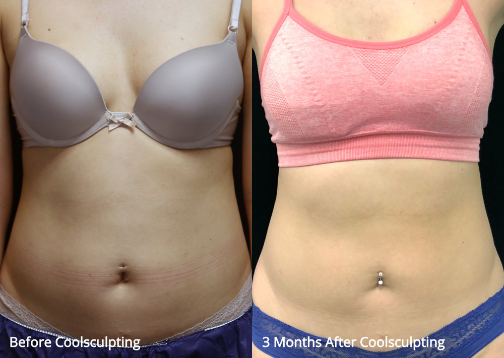 coolsculpting_before_after_18.jpg