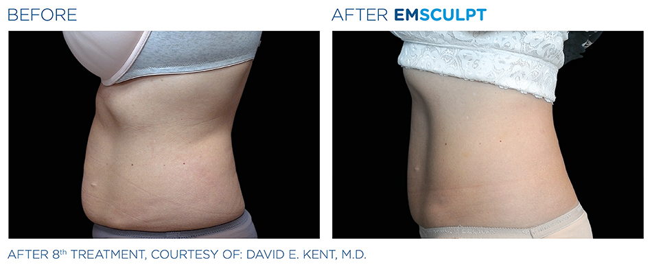 Emsculpt Before and After Photo San Francisco