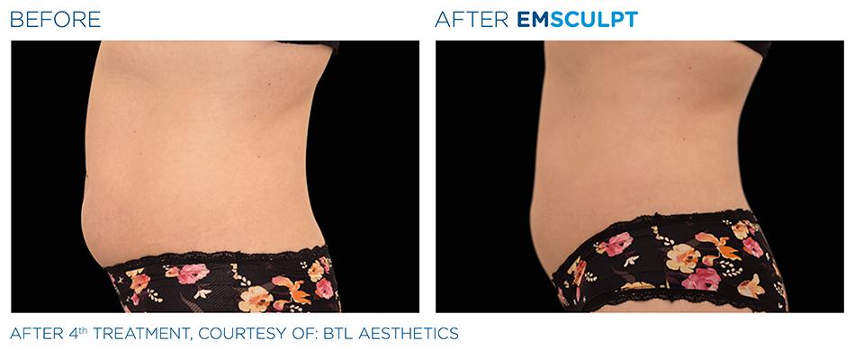 Emsculpt_PIC_Ba-card-female-abdomen-025_ENUS100.jpg