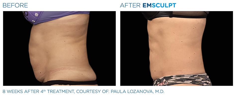 Emsculpt_PIC_Ba-card-female-abdomen-029_ENUS100.jpg