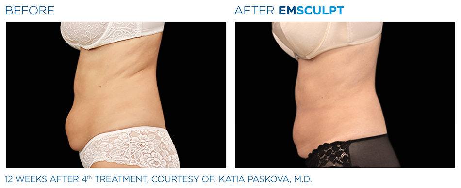 Emsculpt_PIC_Ba-card-female-abdomen-030_ENUS100.jpg