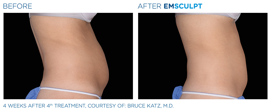 Emsculpt_PIC_Ba-card-female-abdomen-003_ENUS100.jpg