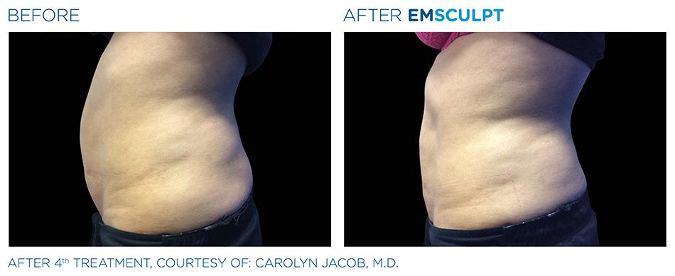 Emsculpt_PIC_Ba-card-female-abdomen-006_ENUS100.jpg