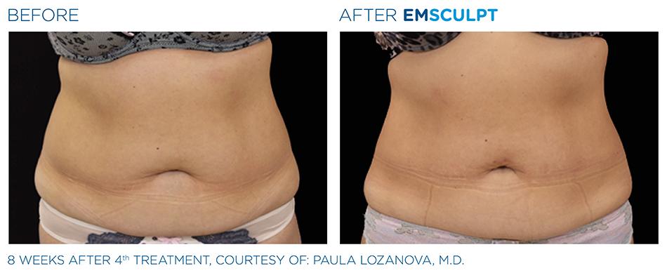 Emsculpt_PIC_Ba-card-female-abdomen-027_ENUS100.jpg
