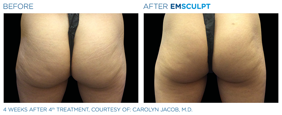 Emsculpt_PIC_Ba-card-female-buttock-005_ENUS100.png