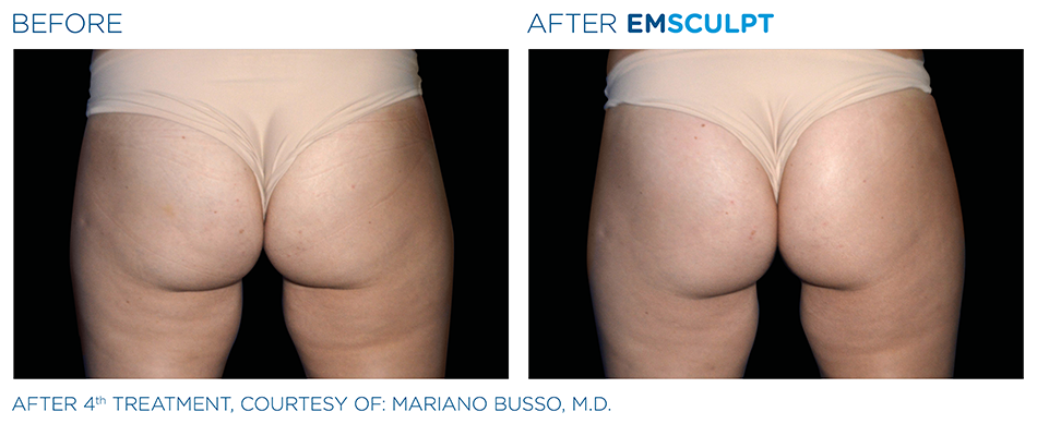 Emsculpt_PIC_Ba-card-female-buttock-009_ENUS100.png