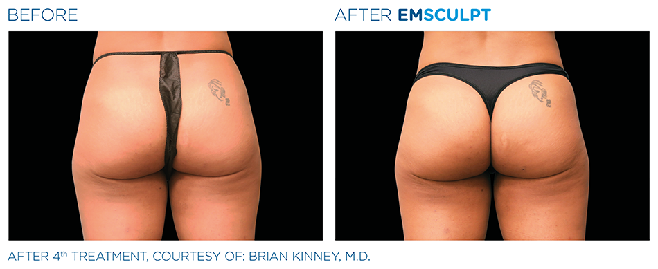 Emsculpt_PIC_Ba-card-female-buttock-014_ENUS100.png