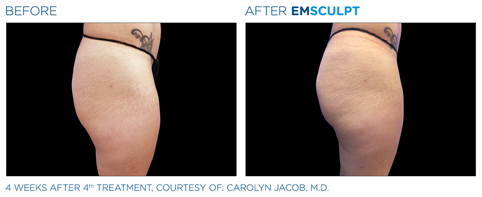 Emsculpt_PIC_Ba-card-female-buttock-017_ENUS100.png