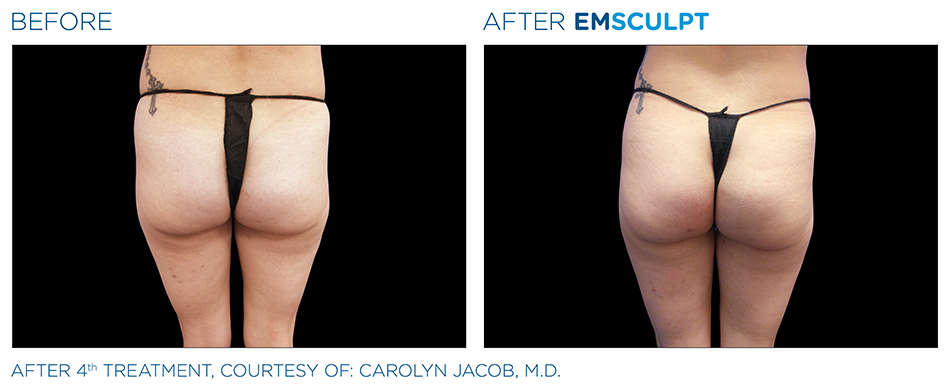 Emsculpt_PIC_Ba-card-female-buttock-018_ENUS100.png