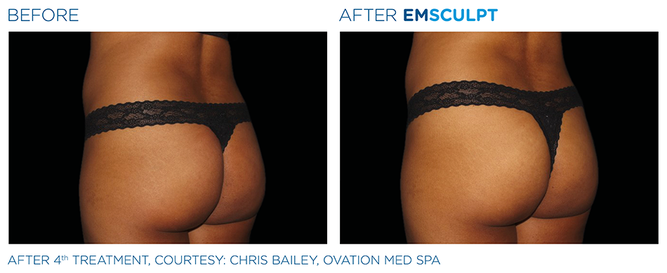 Emsculpt_PIC_Ba-card-female-buttock-036_ENUS100.png