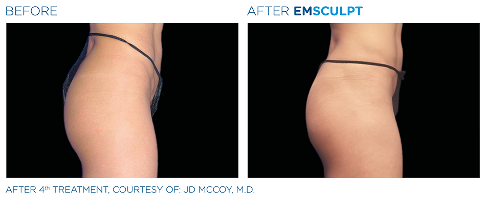 Emsculpt_PIC_Ba-card-female-buttock-038_ENUS100.png