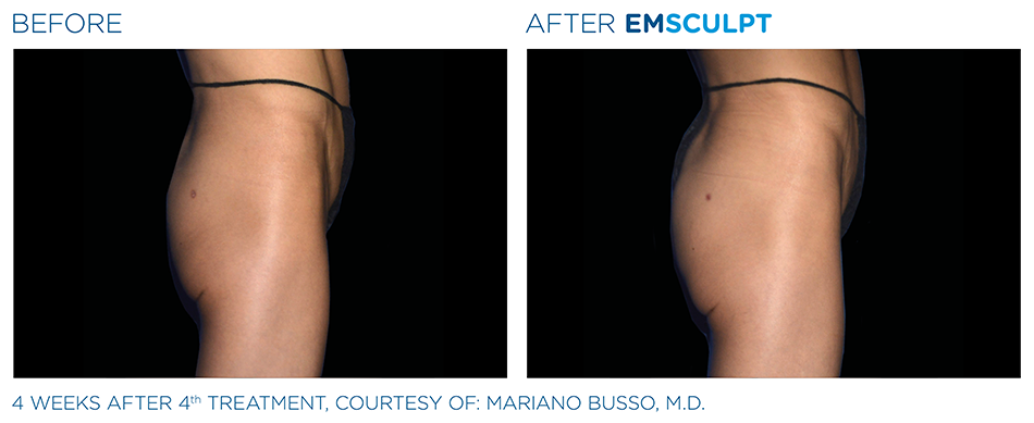 Emsculpt_PIC_Ba-card-female-buttock-040_ENUS100.png