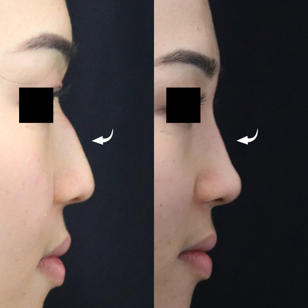 non-surgical-rhinoplasty-ba-42.jpg
