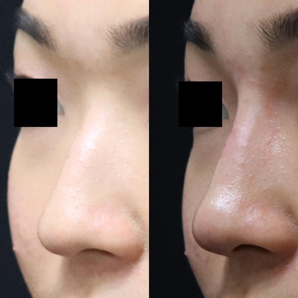 non-surgical-rhinoplasty-ba-43.jpg