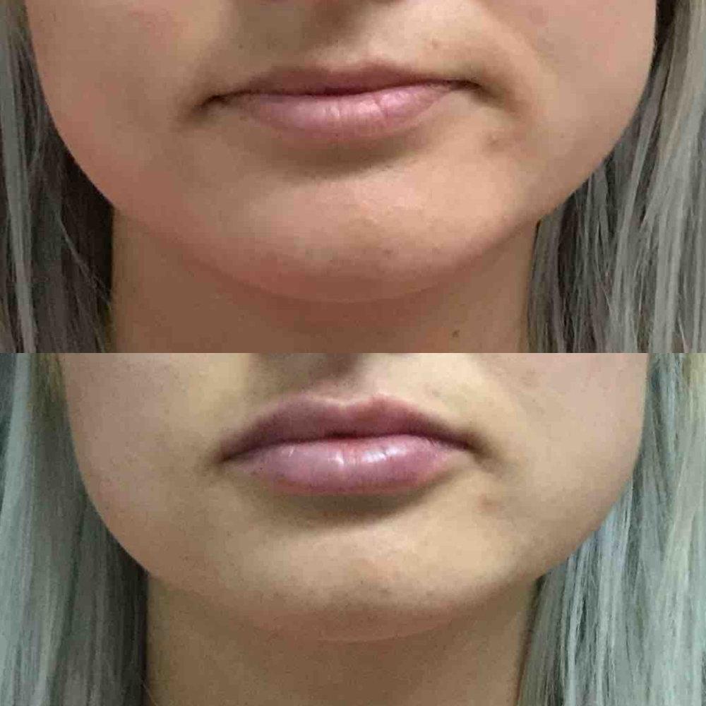 lip_augmentation_ba_64.jpg