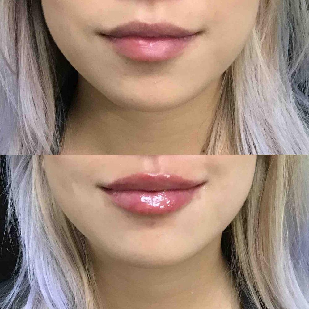 lip_augmentation_ba_69.jpg