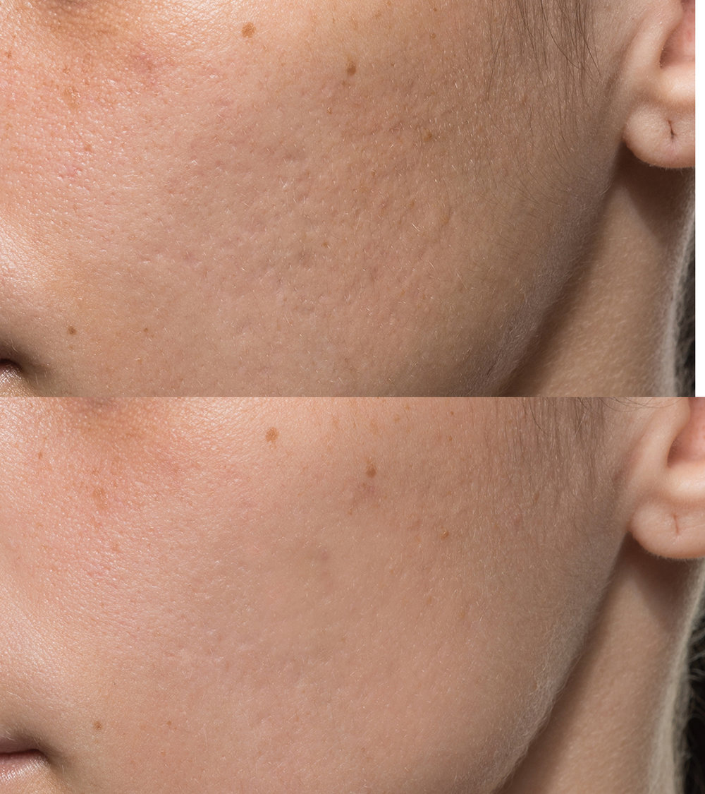 AcnePatient4beforeafter.jpg