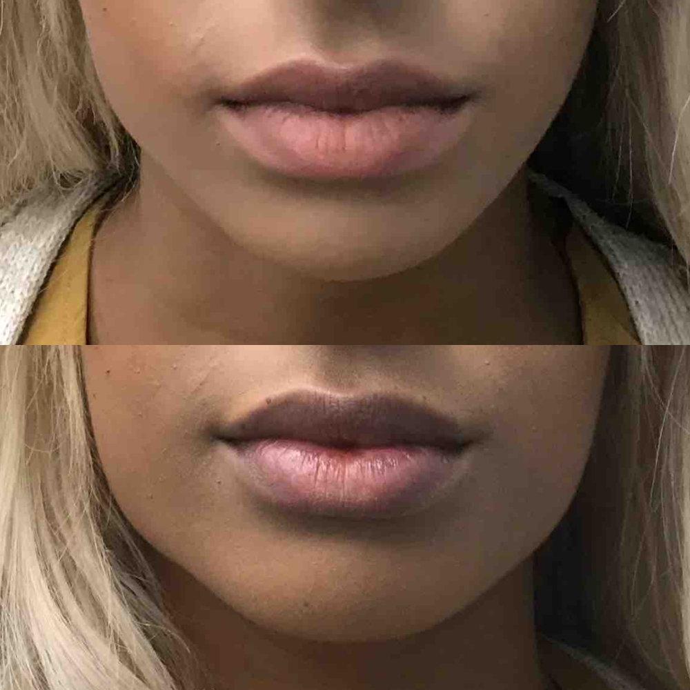 lip_augmentation_ba_72.jpg