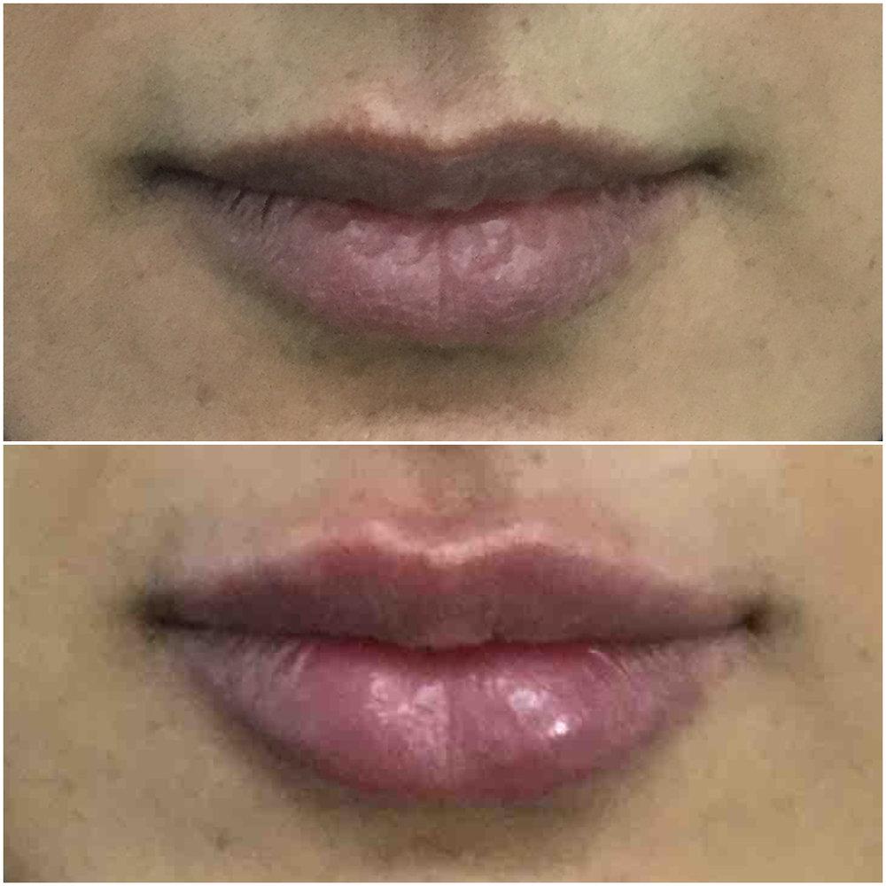 lip_augmentation_ba_70.jpg
