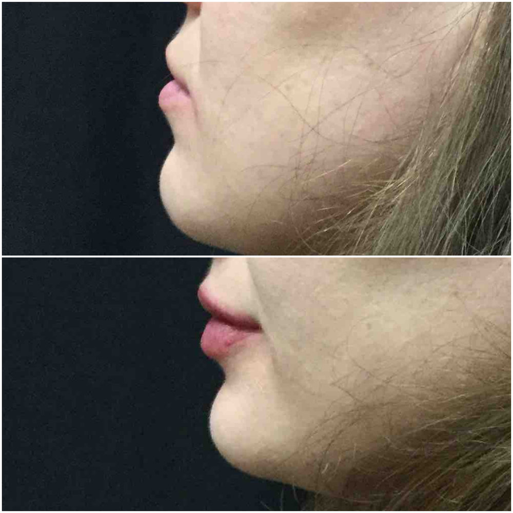 lip_augmentation_ba_79.jpg