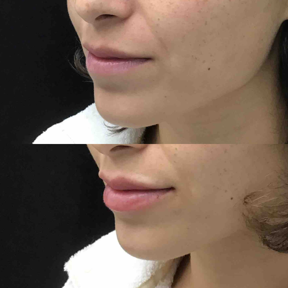 lip_augmentation_ba_81.jpg
