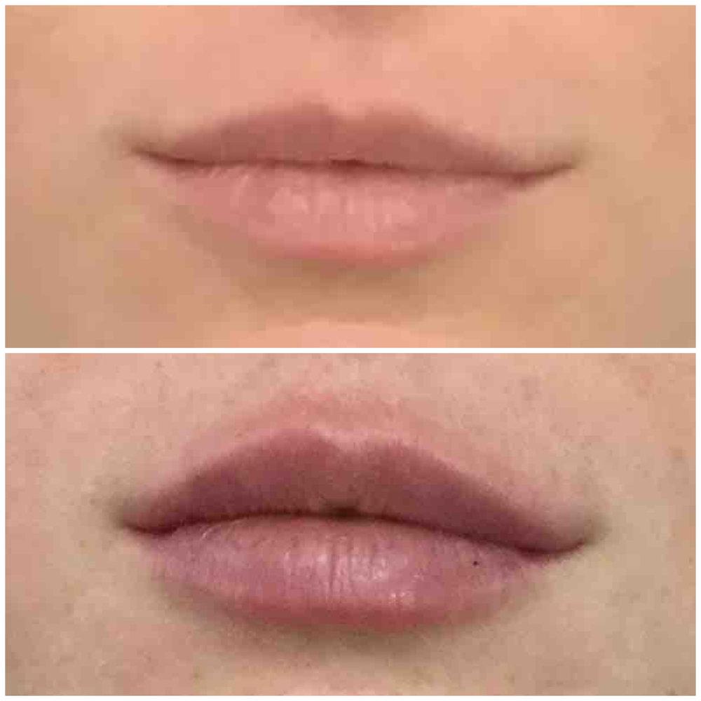 lip_augmentation_ba_82.jpg